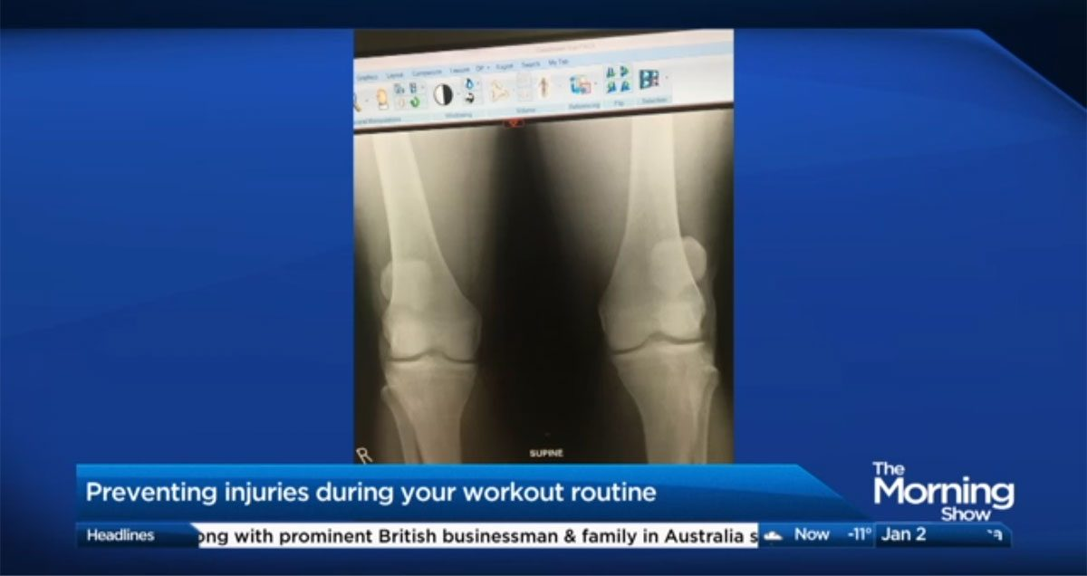 The Morning Show – Avoiding injuries during your New Year's workout Featured Image